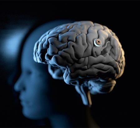 Chip fürs Gehirn von Neuralink
