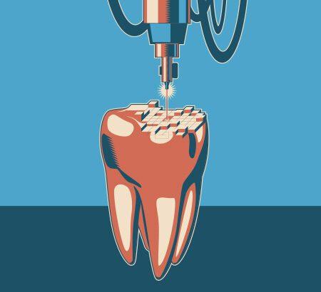 Illustration eines Zahns der von einem 3D-Drucker digital gescannt wird